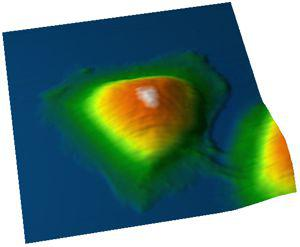 Picture 1: Topography of a HeLa cell