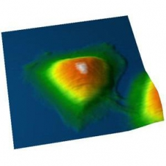 AFM topography of a living HeLa cell